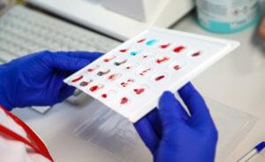 Сколько стоит сдать кровь, кому и как это возможно сделать – разбираемся